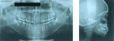 歯科用パノラマレントゲン装置