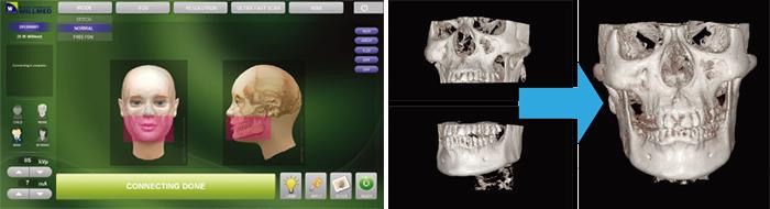 歯科用CTの課題であるメタルアーチファクトを低減