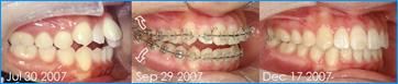 歯列矯正ワイヤ